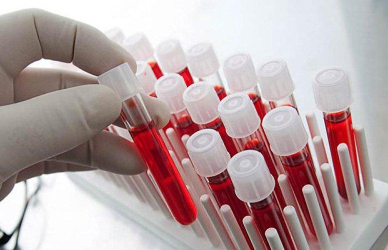 Учеными обнаружена связь между болезнями сердца игруппой крови